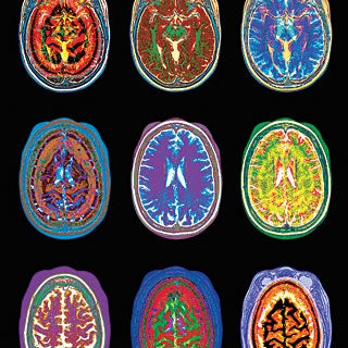 Five Ways Brain Scans Mislead Us