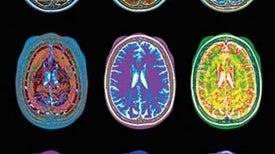 Five Ways Brain Scans Mislead Us