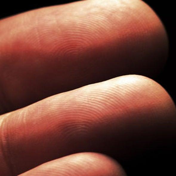 Can You Lose Your Fingerprints?