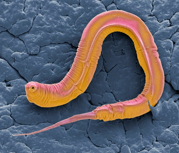 Worm Wiring Diagram May Help Us Understand Our Own Nervous System