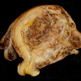 Biopsies Found to Provide Only a Snapshot of Tumor Diversity