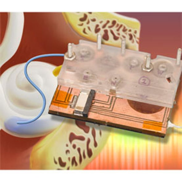 Exotic Micropumps and Gels Offer Hope for Hearing Disorders