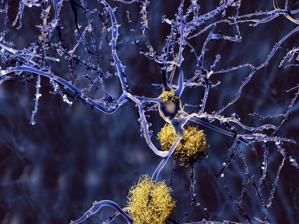 Biogen Halts Studies of Closely Watched Alzheimer's Drug, a Blow to Hopes for New Treatment