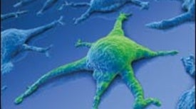 Stem Cells: The Real Culprits in Cancer?