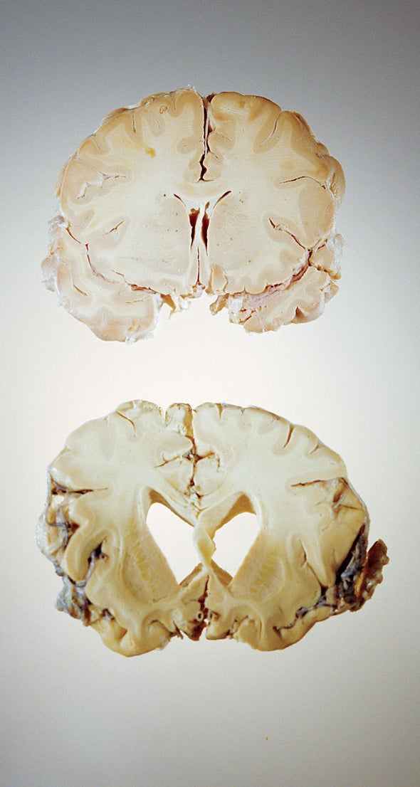 Are Prions behind All Neurodegenerative Diseases?