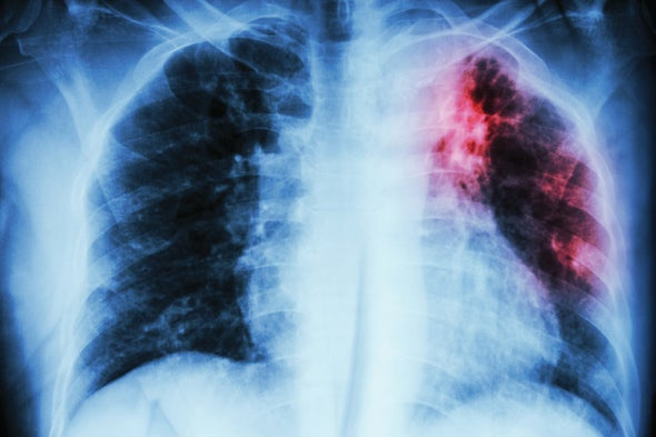 Scientists Solve a Deadly TB Mystery