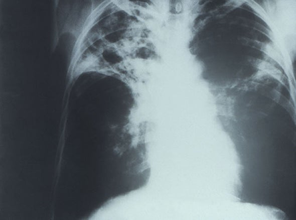 Tuberculosis Now Rivals AIDS As Leading Cause of Death, Says WHO