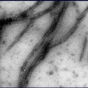 Scientists Turn DNA Tubes into Nanowires