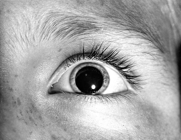 Eye-Opener: Why Do Pupils Dilate in Response to Emotional States?