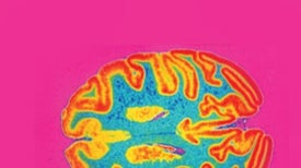 Psilocybin Quiets Brain's Control Centers