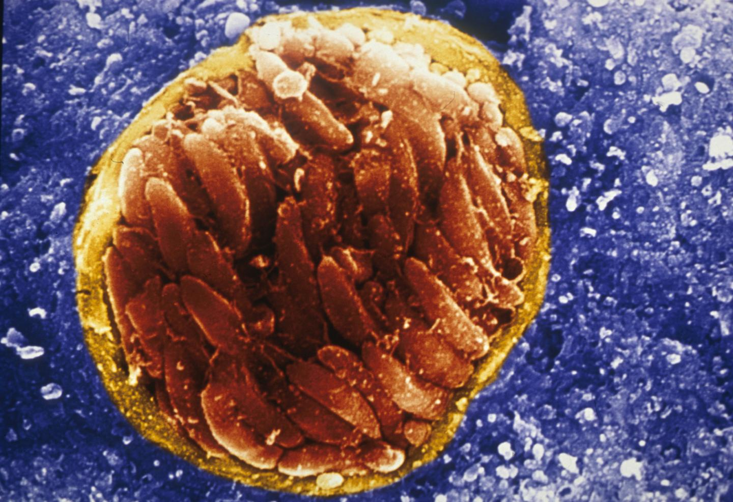 Rage Disorder Linked with Parasite Found in Cat Feces