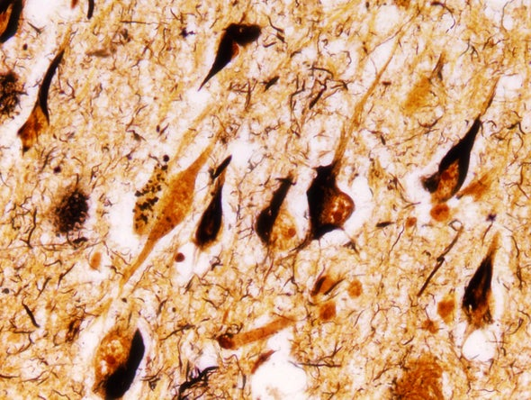 Possible Missing Link in Alzheimer's Pathology Identified