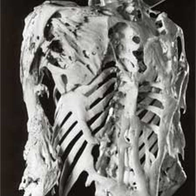 How Can a Genetic Mutation Cause Muscle to Turn into Bone ...