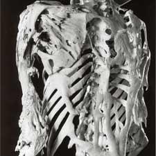 muscle turn to bone genetic disease