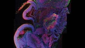 Stem Cells Mimic Human Brain