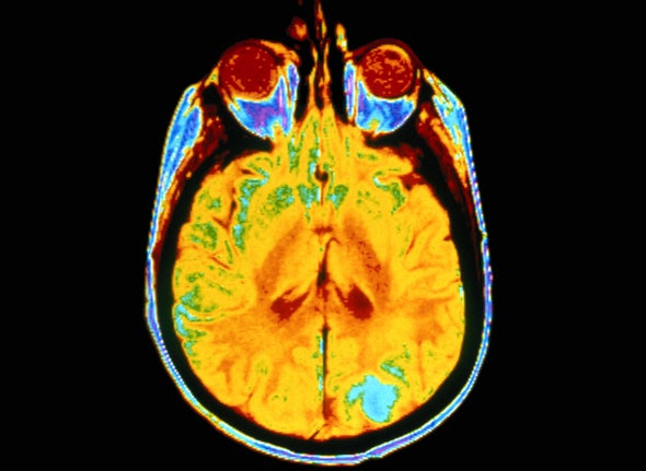New Evidence Points to Personal Brain Signatures