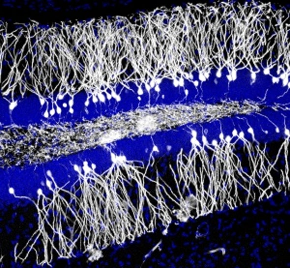 New Brain Cells Erase Old Memories