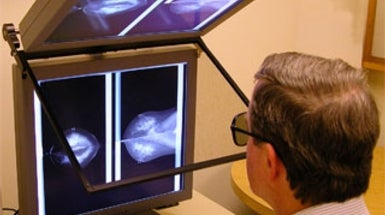 3-D Mammography Adds New Dimension to Breast Cancer Screening