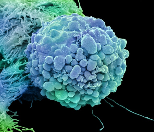 FDA Clears First Cancer Drug Based on Genetics of Disease, Not Tumor Location