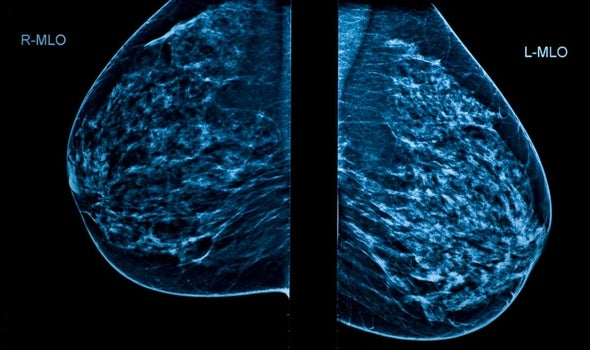 U.S. Panel Finalizes Breast Cancer Screening Recommendations