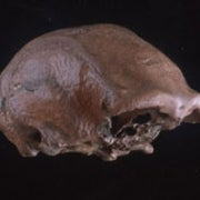 Javanese Fossil Skull Provides New Insights into Ancient Humans