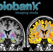 Massive U.K. Brain-Mapping Project Releases First Results