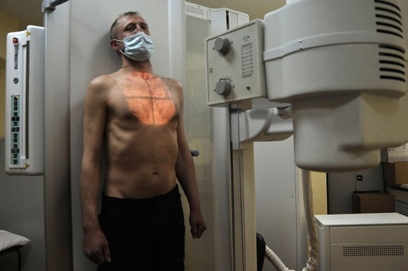 Drug-Resistant Tuberculosis from Russia Is Spreading More Easily