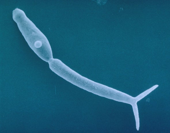 Creepy Swimmer's Itch Parasite in Northern Lakes Can Scratch Summer Fun