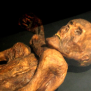 Iceman Ötzi Died with a Bellyache