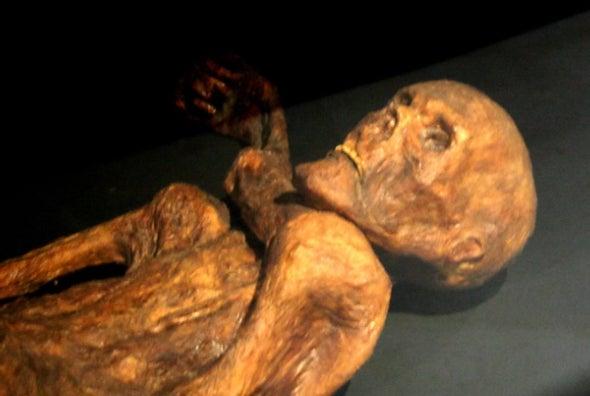 Iceman Ötzi Died with a Bellyache