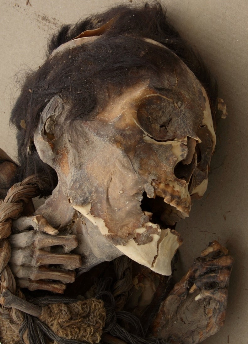 Mummy's Hair Reveals Signs of Arsenic Poisoning