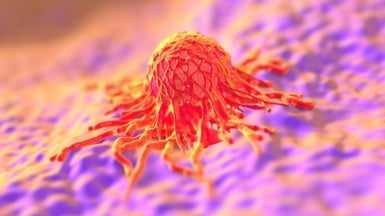 Global Initiative Seeks 1,000 New Cancer Models