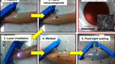 How Lasers and Glue Help to Weld Tissue Ruptures
