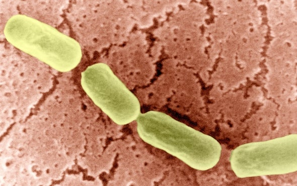 Prionlike Protein Spotted in Bacteria for First Time