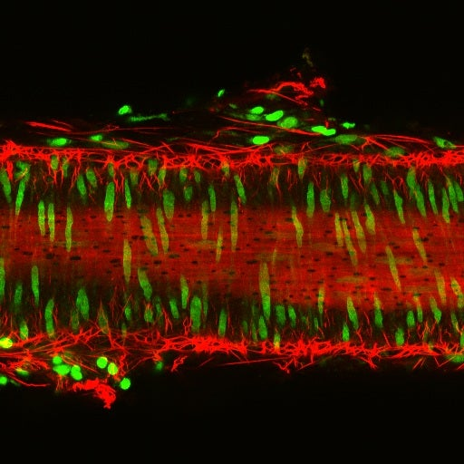 3-D Microscopy Casts Blood Vessel's Structure in New Light