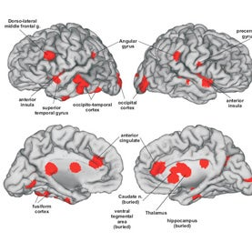 Passionate Love in the Brain, as Revealed by MRI Scans [Web Exclusive Graphic]
