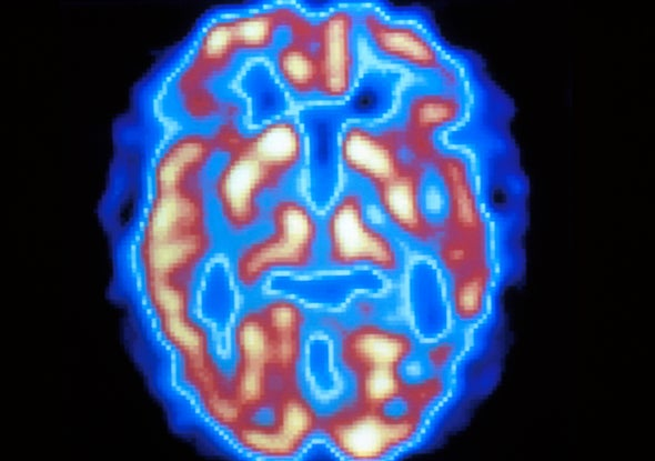 AI Tool Could Help Diagnose Alzheimer's