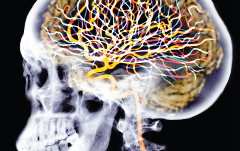 Injectable Brain Implants Talk to Single Neurons