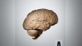 Neuroscience in the Courtroom
