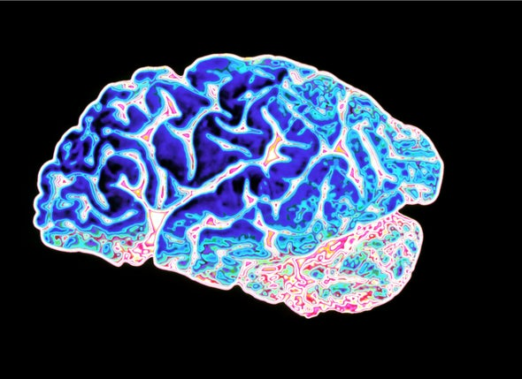 "Is ""Friendly Fire"" in the Brain Provoking Alzheimer's Disease?"