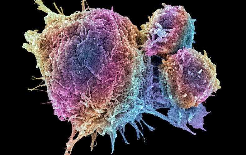 "Cancer ""Moon Shot"" Effort Nets New Funds with NIH–Pharma Partnership"
