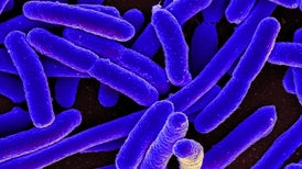 Investigators Find Another Superbug Case in the U.S.