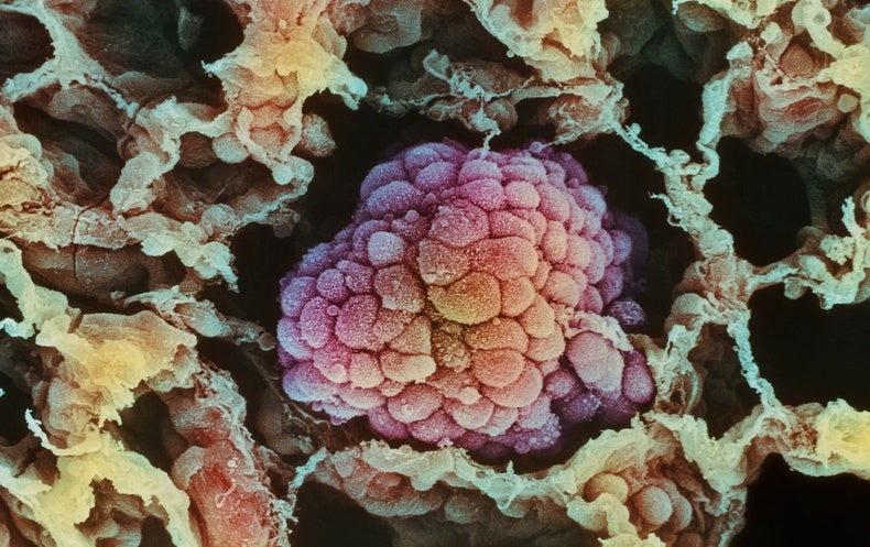 👓 Nobel Prize for Medicine Goes to Cancer Immune Therapy Pioneers | Scientific American