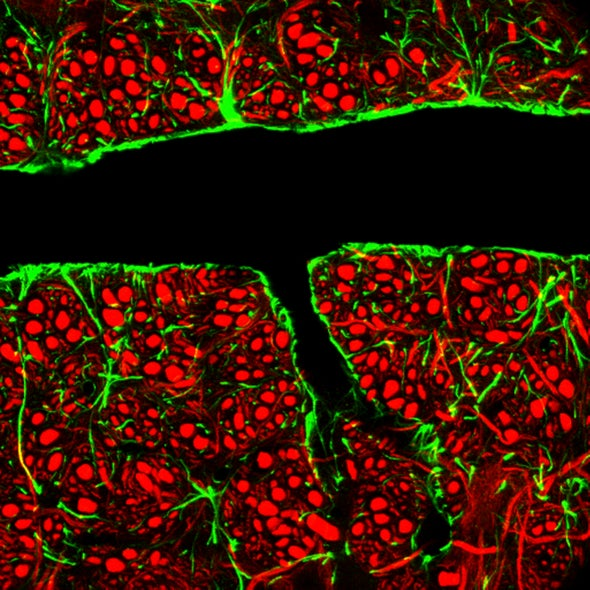 """Drug-Carrying """"Nanoswimmers"""" Could Slither Past the Brain's Cellular Defenses"""