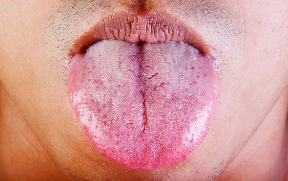 Mouth Sets Healing Standard