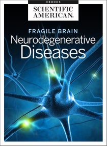 Fragile Brain: Neurodegenerative Diseases