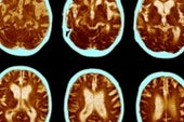 Autism, OCD and Attention Deficit May Share Brain Markers