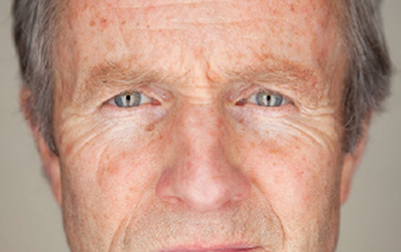 """""""Super Agers"""" Have Brains That Look Young"""