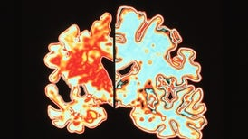Could Magnetic Brain Stimulation Help People with Alzheimer's?