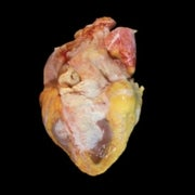 Telltale Hearts: What Autopsies Reveal about This Vital Organ